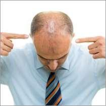 dermarollerbest.com Dermarolling for hair loss and treatments